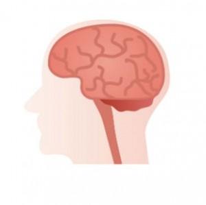 脳卒中の名医